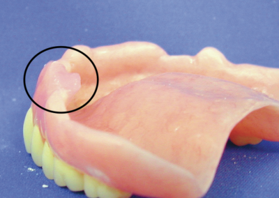 Fig.8 EasySoft used to seal sinus opening.