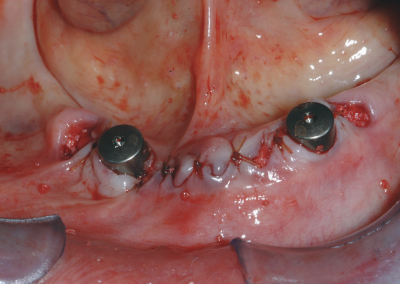 Fig.2 Used as temporary liner immediately following dental implant placement.